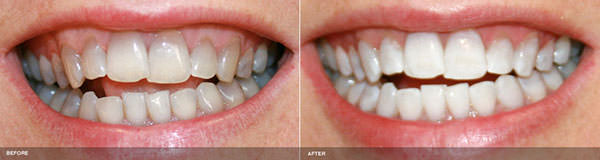 Serene Dental Center patient before and after Zoom! Whitening in Irvine