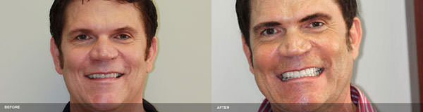 Serene Dental Center Irvine patient smile before and after implant and crown treatments