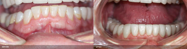 Serene Dental Center patient's teeth before and after implant and crown treatments