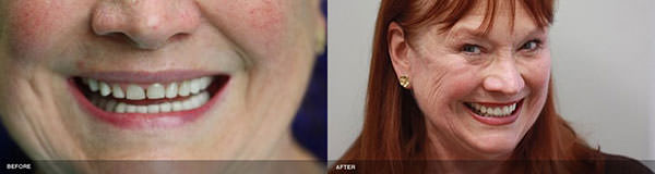 Serene Dental Center patient before and after porcelain Lava crown treatment