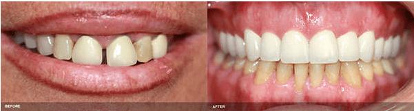 Dental Crowns Irvine Before & After