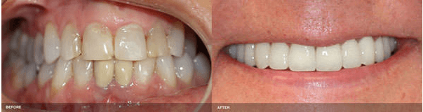 Patient Before & After Dental Crown Treatment in Irvine