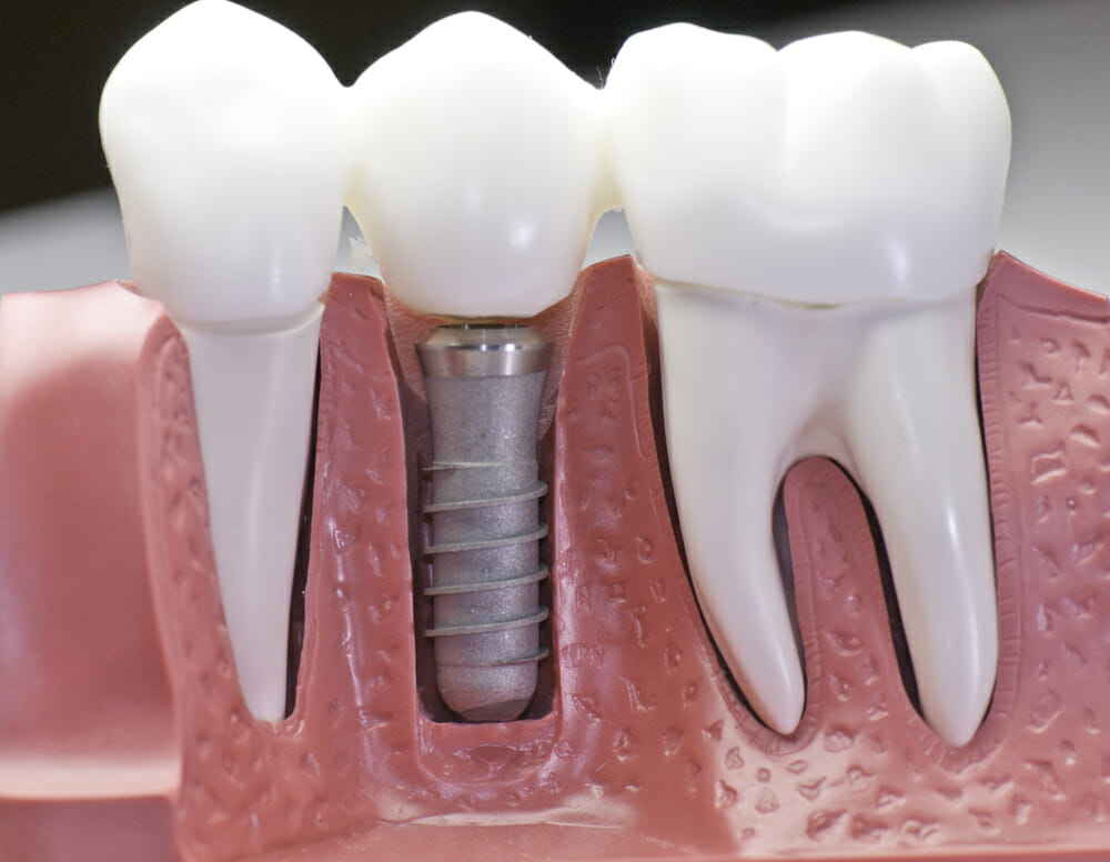 Why Implants Are Superior Tooth Replacements to Bridges