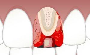 serene dental root canal irvine ca